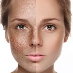 woman-with-hyperpigmentation