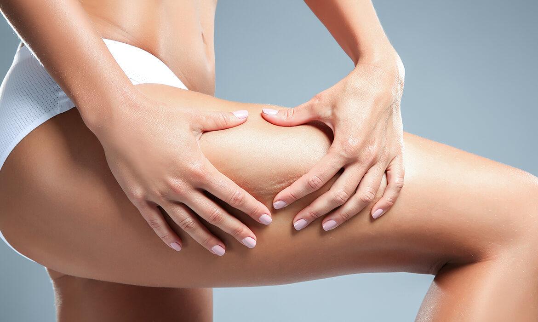 woman cellulite