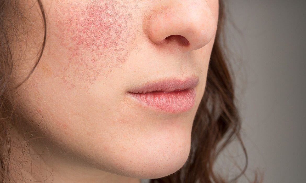woman-suffering-eczema