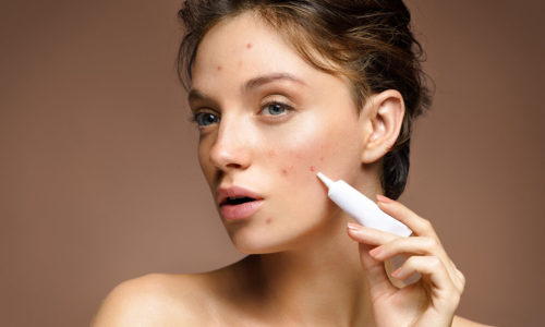woman acne treatment