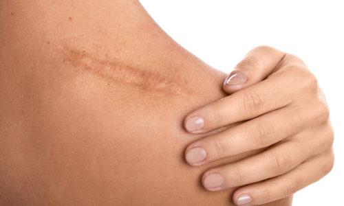 woman scar tissue